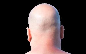 Micropigmentação do Couro Cabeludo 8