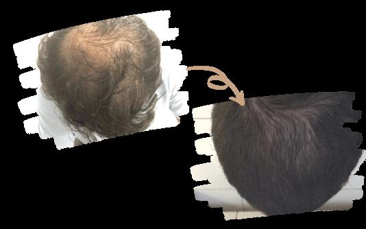 PRP cheveux 1