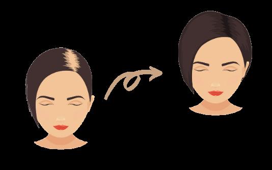 PRP cheveux 2