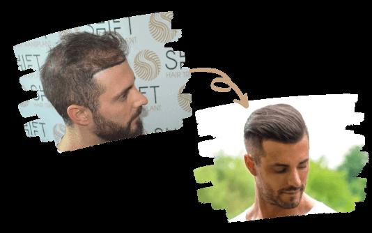 Trapianto di capelli per uomini 2