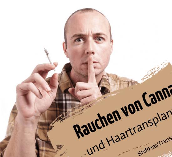 Rauchen von Cannabis und Haartransplantation 6
