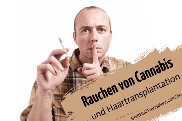 Rauchen von Cannabis und Haartransplantation 7