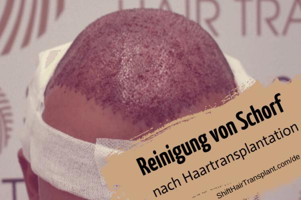 Reinigung von Schorf nach Haartransplantation 8