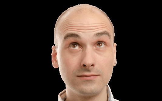 Transplante de cabelo para homens 138