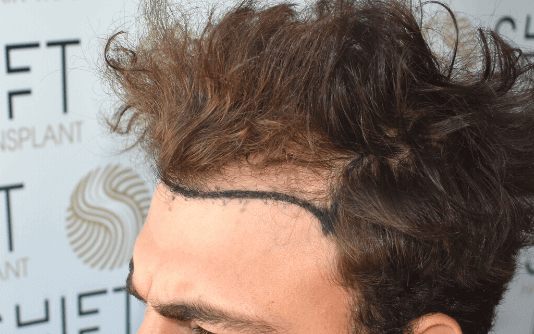 Trapianto di capelli FUE 20