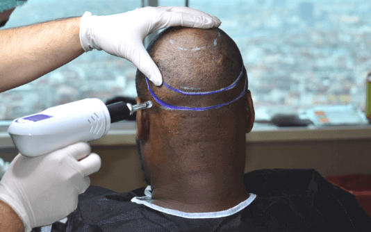 Trasplante capilar sin agujas 4