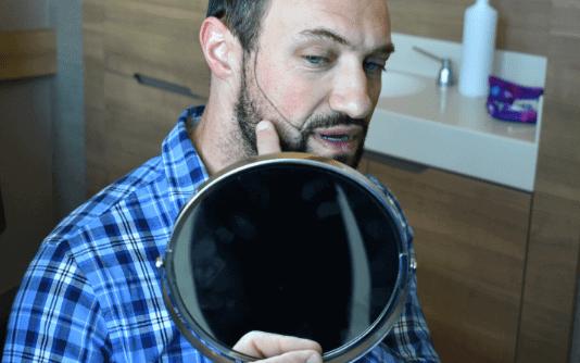 Trasplante de barba 8