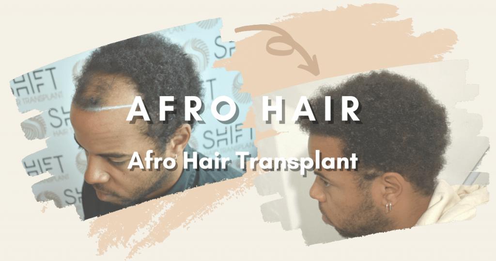 SHIFT Hair Transplant 5