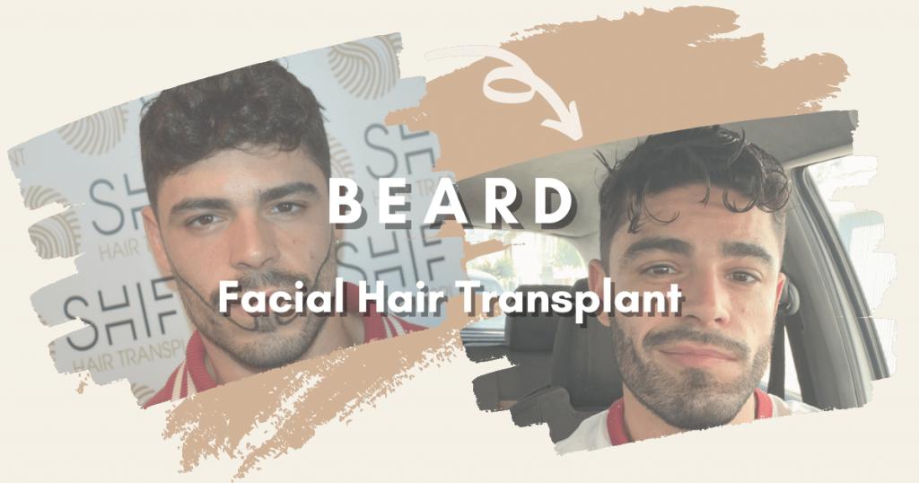 SHIFT Hair Transplant 6