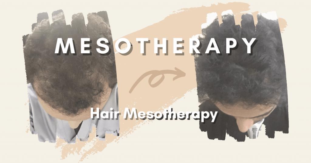 SHIFT Hair Transplant 8
