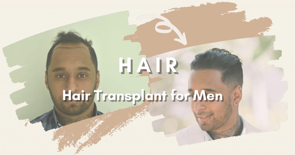SHIFT Hair Transplant 2