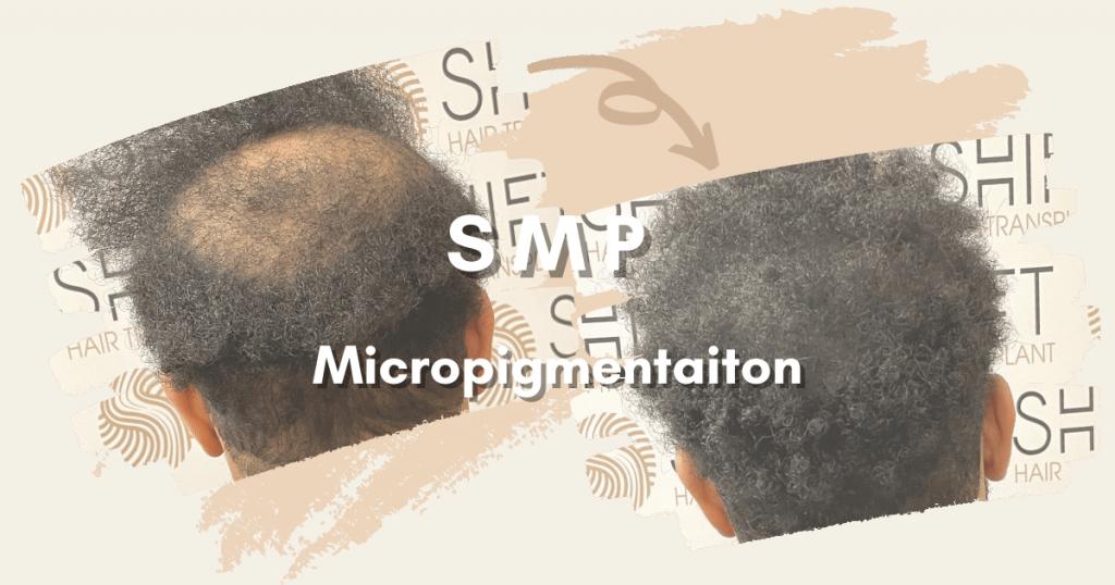 SHIFT Hair Transplant 9