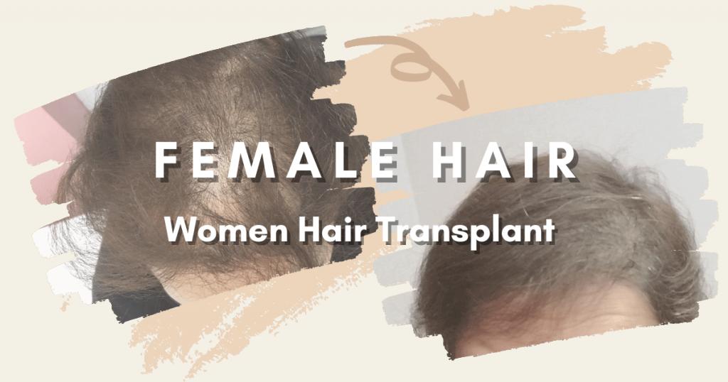 SHIFT Hair Transplant 3